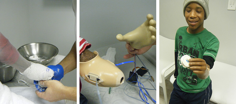 Child myo-arm prosthesis
