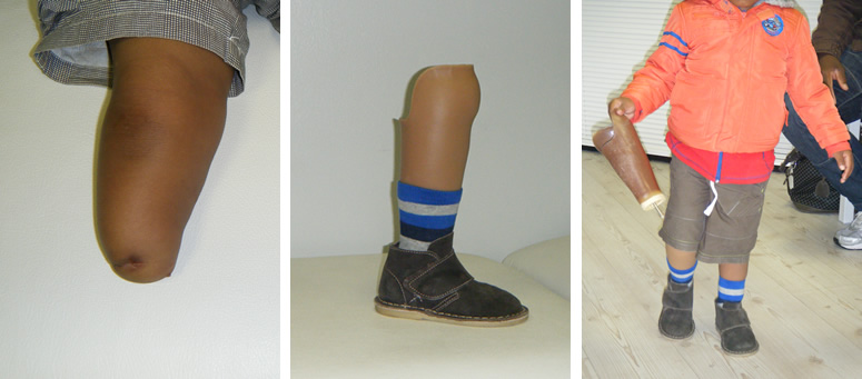 Child below knee prosthesis
