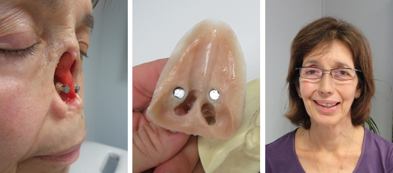 Silicone nose prosthesis