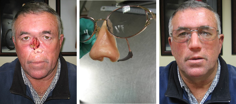 Silicone nose prosthesis Glasses