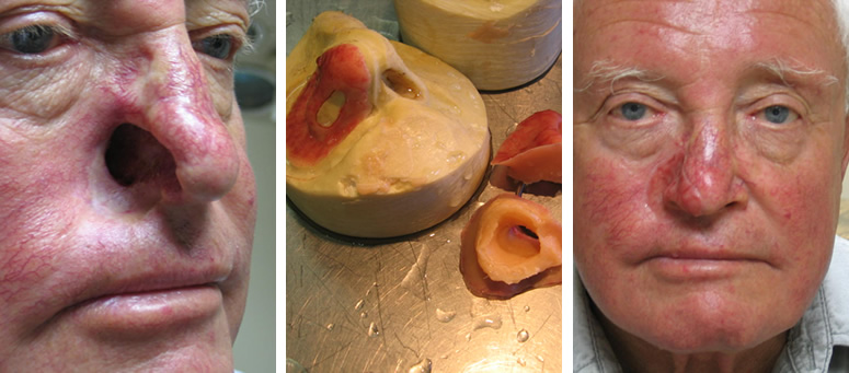Partial silicone nose prosthesis