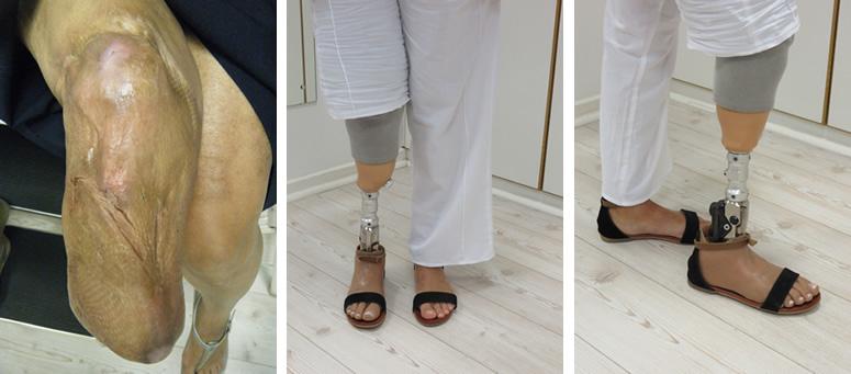 Below knee residual limb