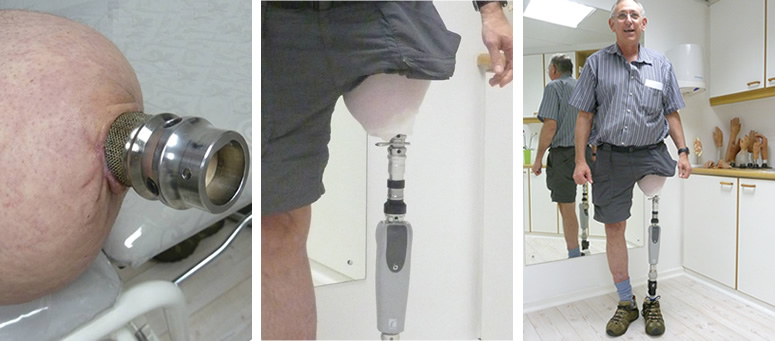 Osseointegrated prosthetics