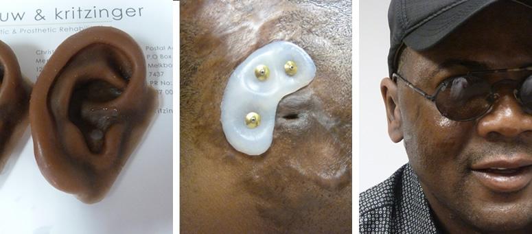 Osseointegrated ear