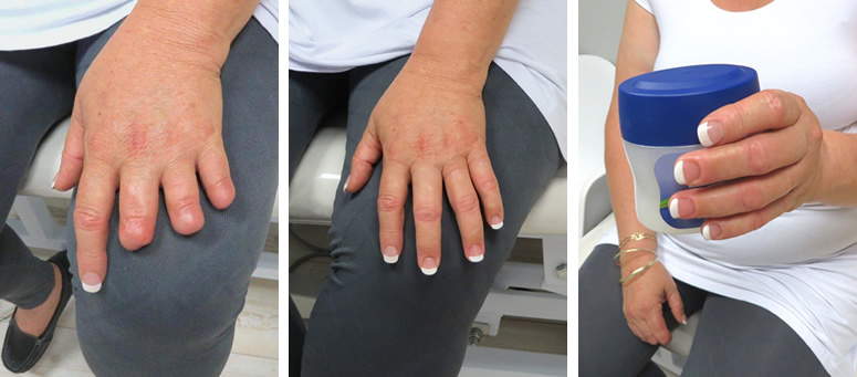 Multiple finger prostheses