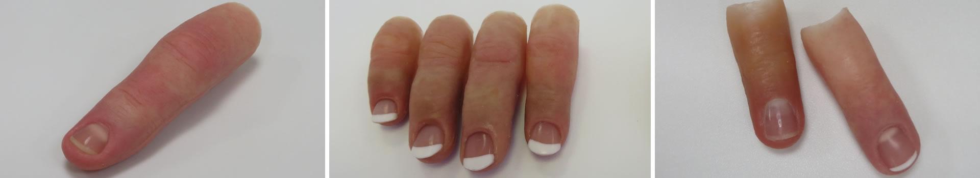 Silicone Finger Prosthetics