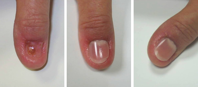 Prosthetic thumb nail replacement