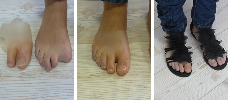 Partial toe prosthesis