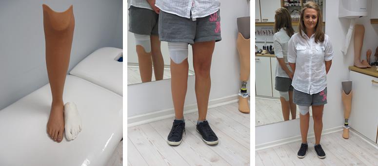 Below knee prosthesis