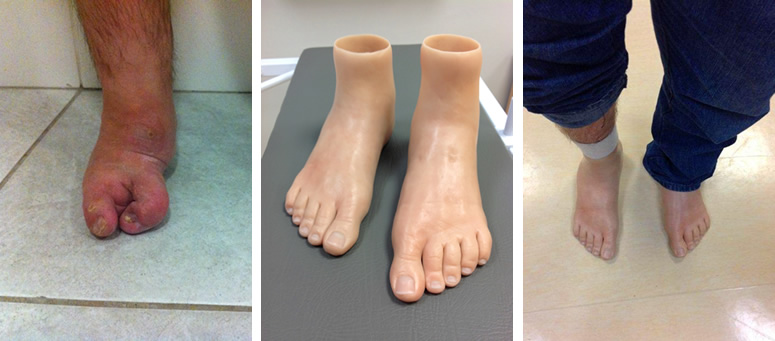 Bilateral silicone foot prosthesis