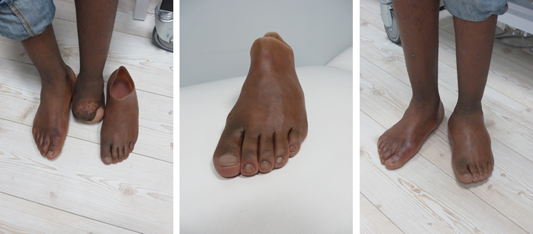 Partial foot amputation