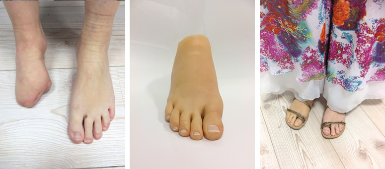 congenital partial foot