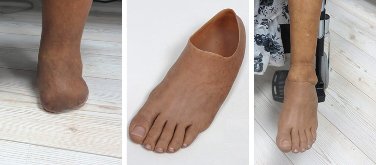 Partial foot silicone prosthesis