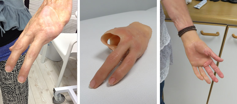 Partial hand silicone prosthesis