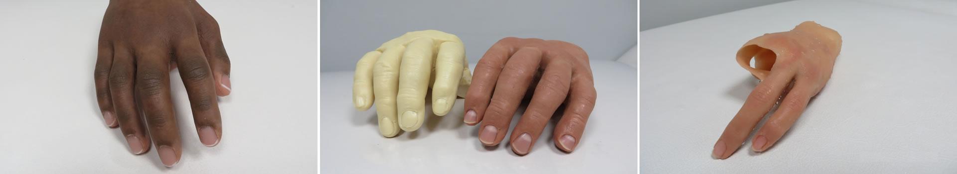 Prosthetics & Orthotist