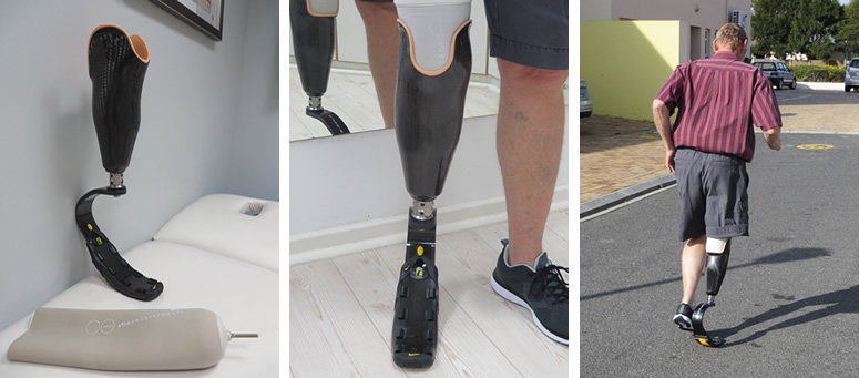 Below Knee Sports Prosthesis