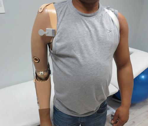 Elbow Mechanical Prosthesis