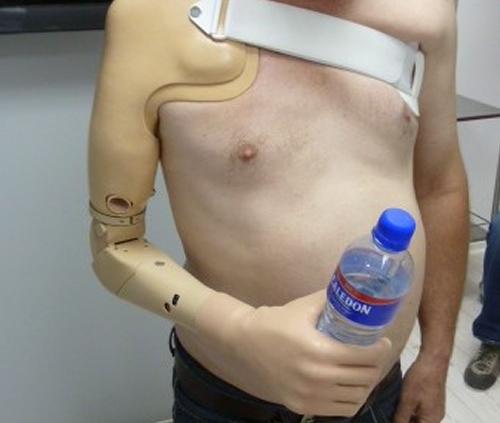 Elbow Myoelectric Prosthesis