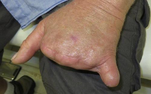 Middle Finger Amputation