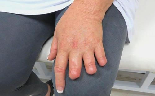 Silicone Finger Prosthetic