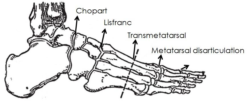 Foot Schematic