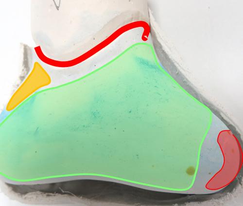 Partial Foot Cast