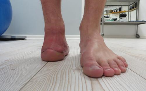 Częściowa stopa