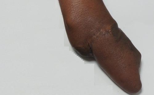 Fingers Amputation