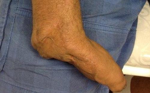 Thumb Amputation