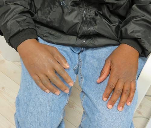 Hand Prostheses