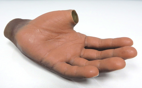 Silicone Hand Prosthesis