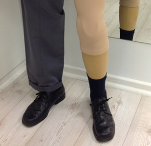 Completed Prosthetic Leg