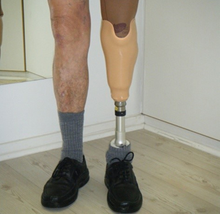 Prosthetic Leg Metal Adapters