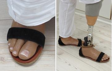 Hybrid Prosthetic Leg