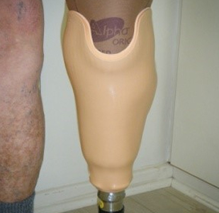 Prosthetic Leg Socket