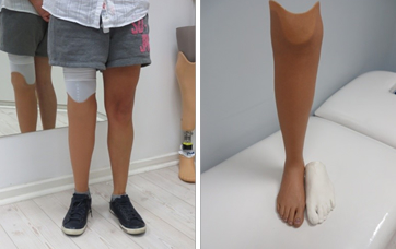 Silicone Cover for Prosthetic Leg