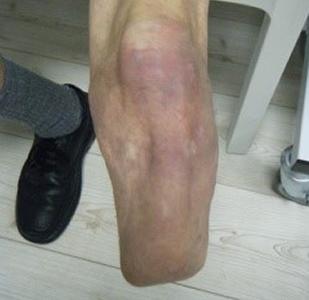 Leg Prosthesis