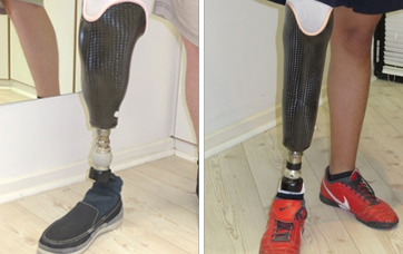 Cosmetic Covering for Prosthetic Leg